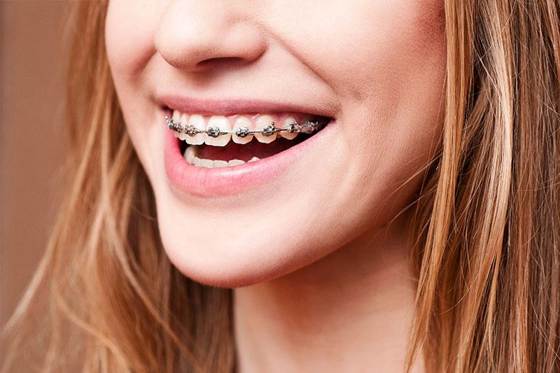 Orthodontics in Spring