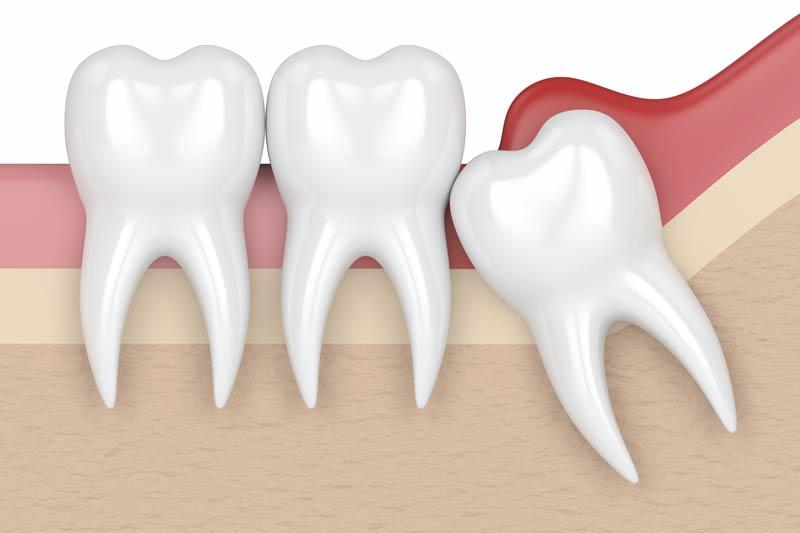 Wisdom Teeth Removal in Spring
