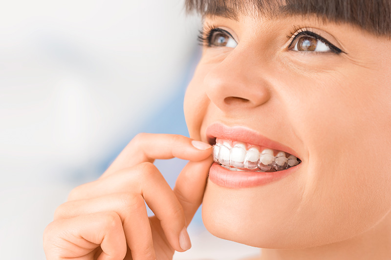 Teeth Whitening in Spring